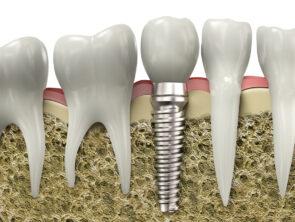 Implantologie et chirurgie