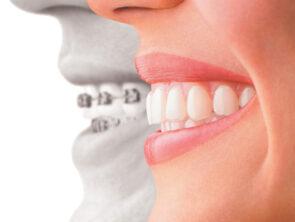 Orthodontie complet et Invisalign